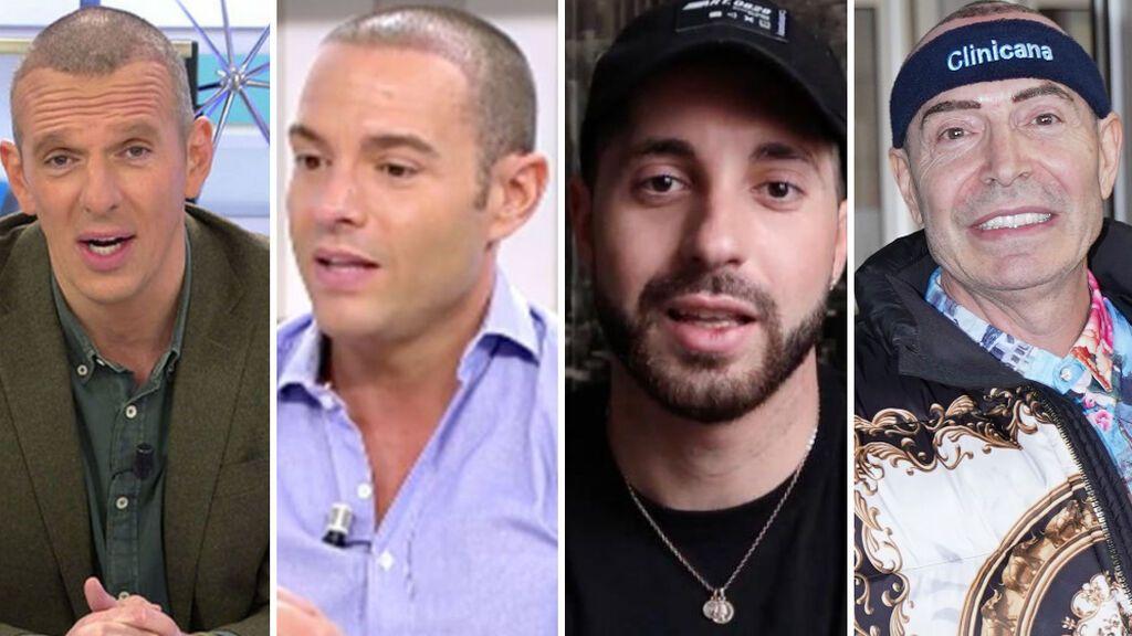 Antonio Rossi no es el único: otros famosos de Telecinco que se hicieron un injerto capilar
