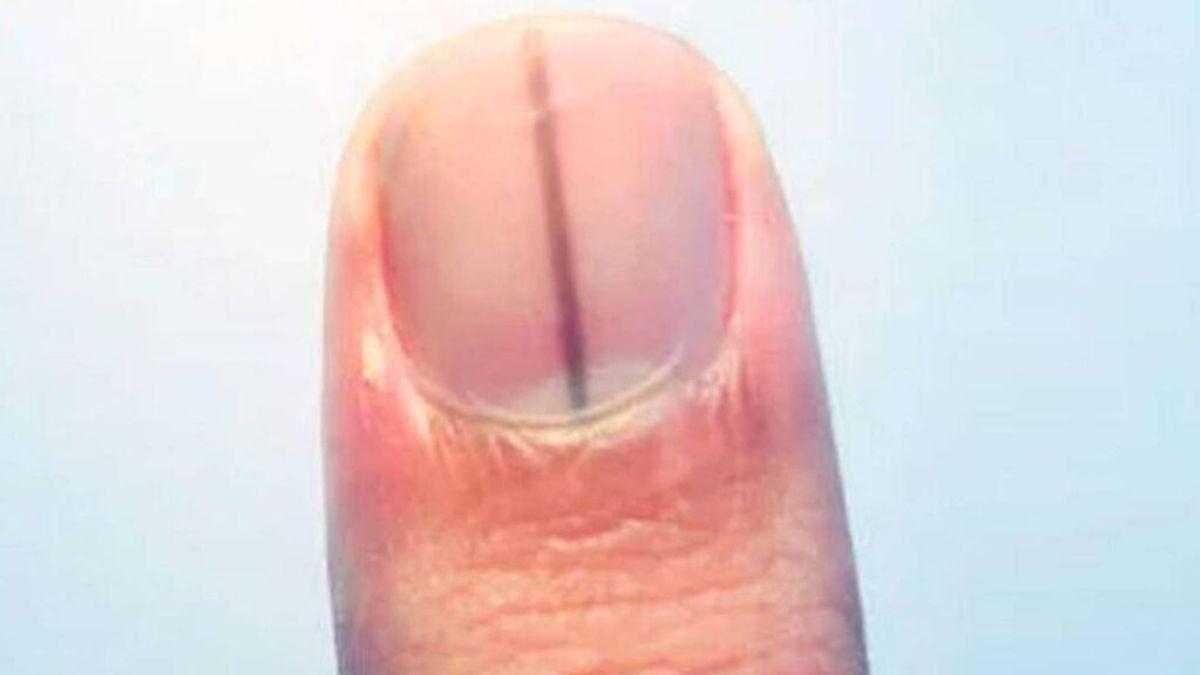 Líneas negras en las uñas, qué significan y cuándo son preocupantes