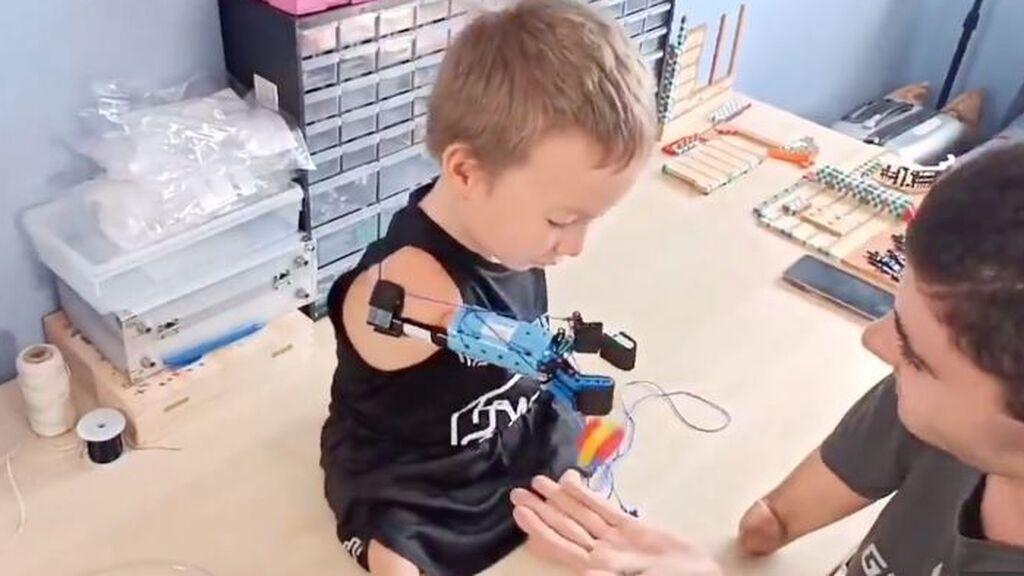David cambia la vida de Beknur: Le fabrica una prótesis de  brazo con piezas de lego