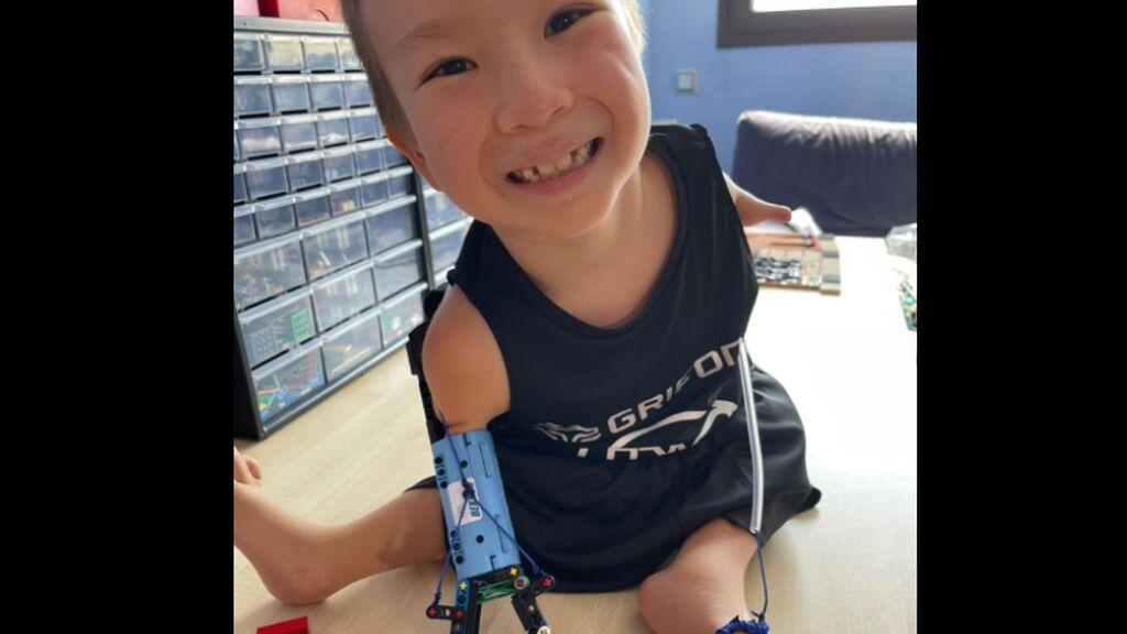 Beknur, de 8 años, ya tiene su brazo lego