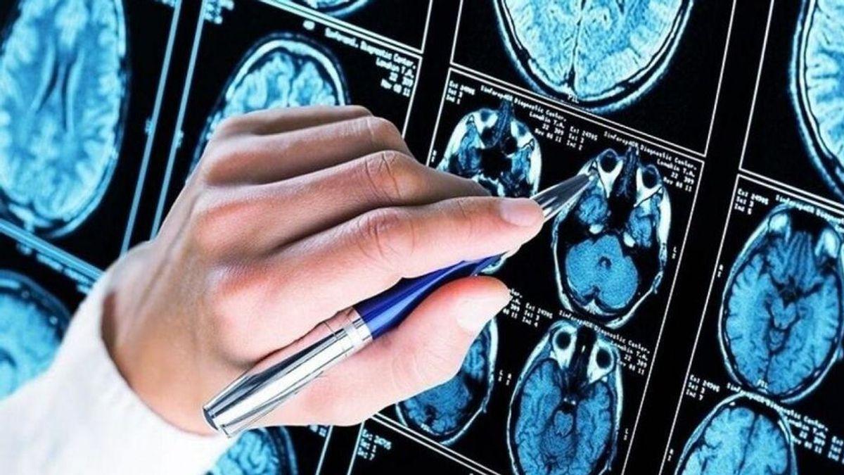 Investigadores crean un algoritmo capaz de predecir la aparición del Alzhéimer con una precisión del 99%