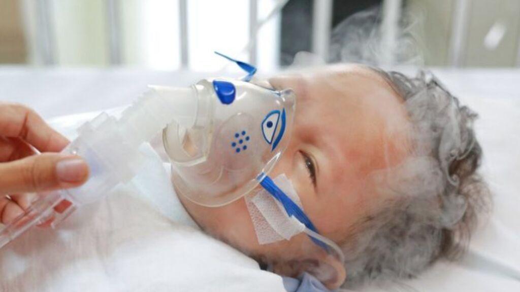 Neonátologos piden vigilar el virus respiratorio sincitial, que afecta a bebés, por culpa del covidA