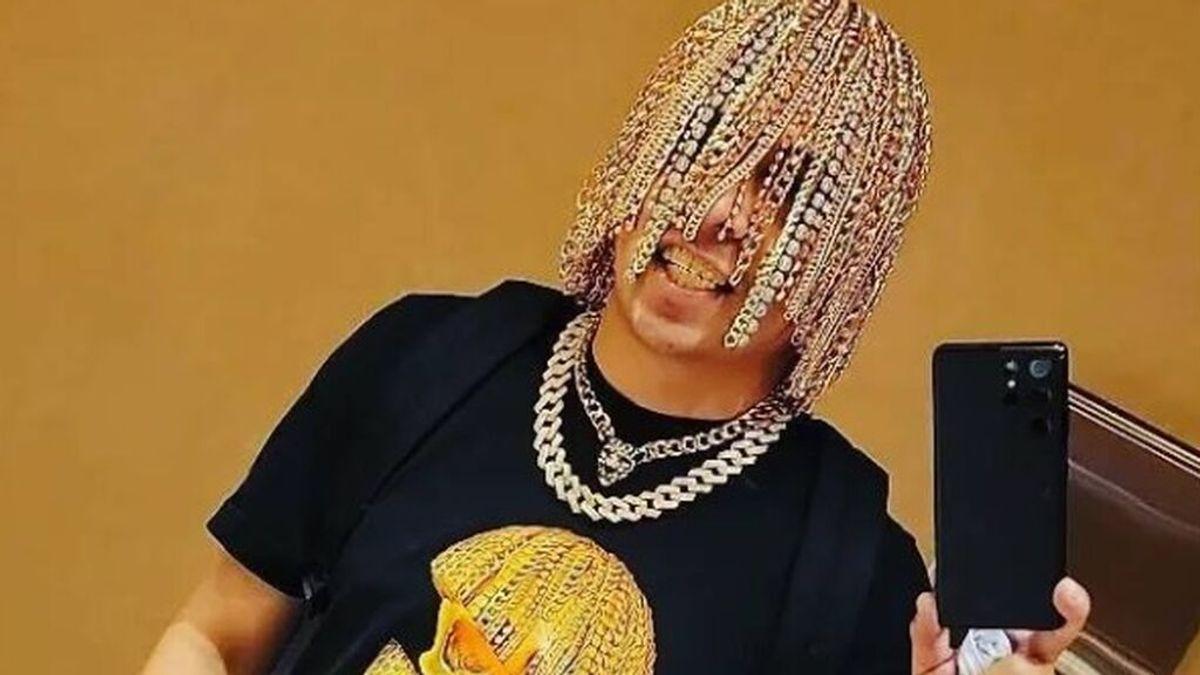 Dan Sur, el rapero que se ha implantado quirúrgicamente cadenas de oro en la cabeza