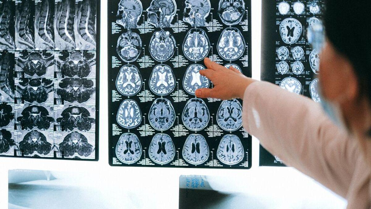 ¿Por qué fracasan todos los fármacos contra el alzhéimer?