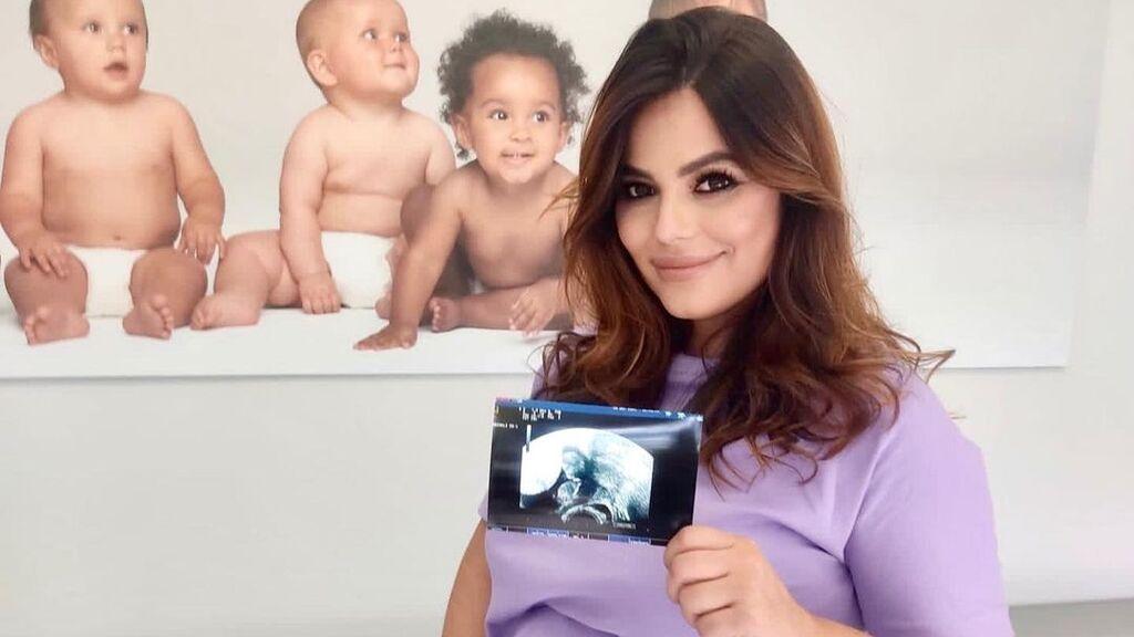 """Marisa Jara, embarazada de su primer hijo: """"Me aconsejaron esperar por mi bienestar emocional"""""""