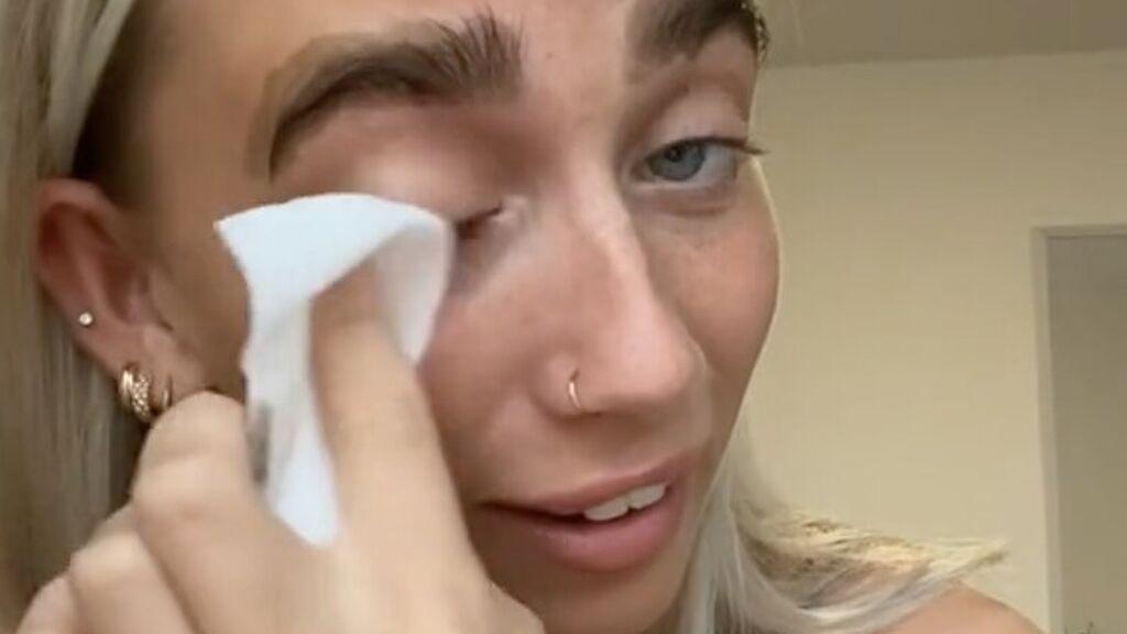 """Una tiktoker se intenta teñir las cejas en casa y sale mal: """"Cuando dejas el tinte demasiado tiempo"""""""
