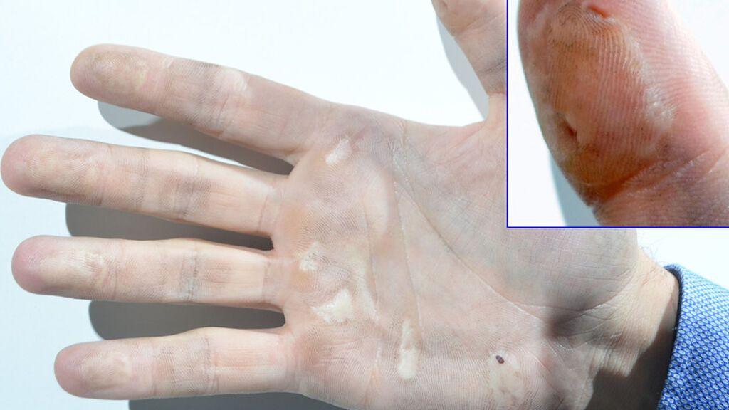 Un detenido en Vigo se corta trozos de su propia piel para pegarlos en los dedos y ocultar sus huellas dactilares
