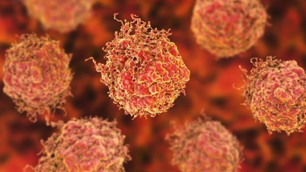 Demuestran que una sustancia presente en plásticos de uso cotidiano es factor de riesgo de cáncer de próstata