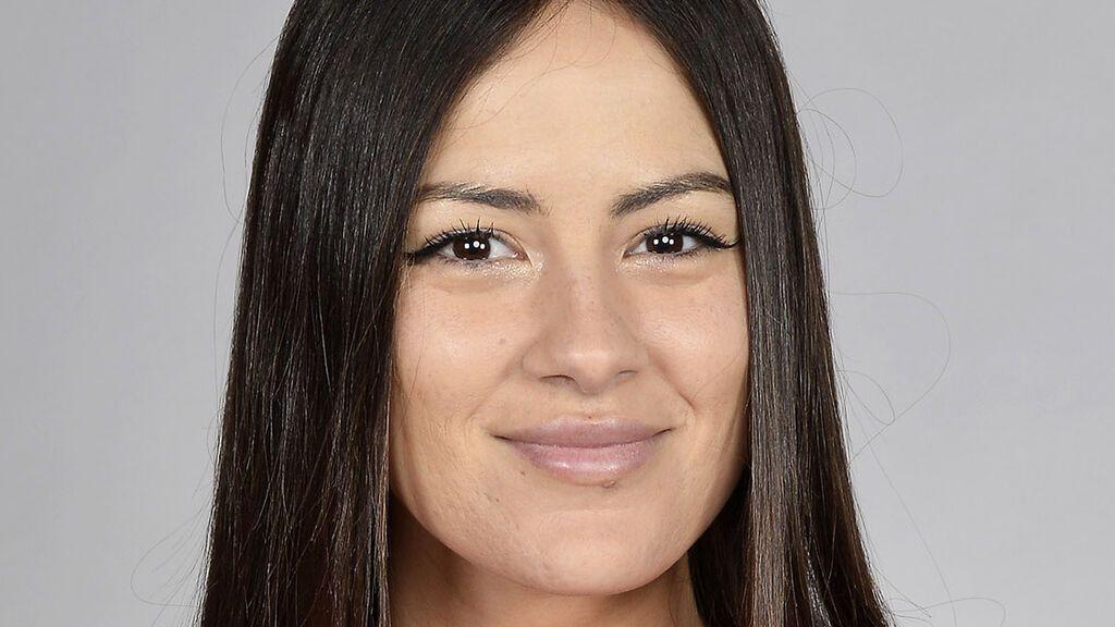 Melyssa Pinto reivindica la naturalidad mostrando el brote de granos que le ha salido en la cara