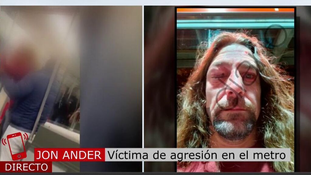 """Jon, brutalmente agredido en el metro de Bilbao: """"Cuando me quise dar cuenta tenía a los cinco chicos dándome una paliza"""""""