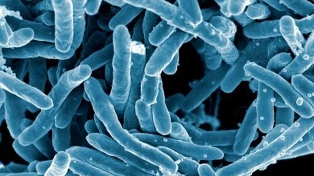 Las muertes por tuberculosis crecen por primera vez en más de una década a raíz de la covid
