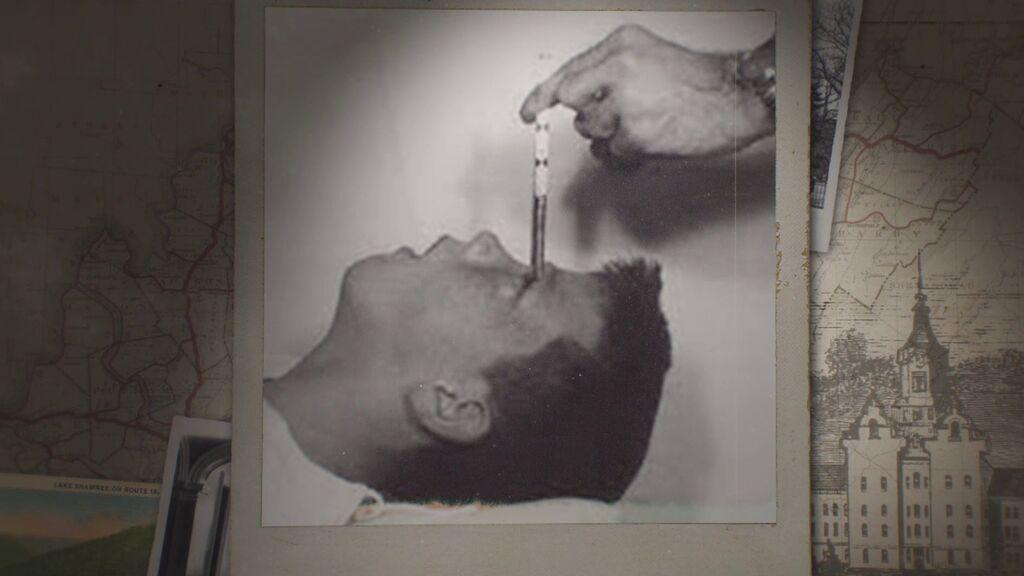Lobotomías y otras atrocidades a pacientes de un psiquiátrico estadounidense