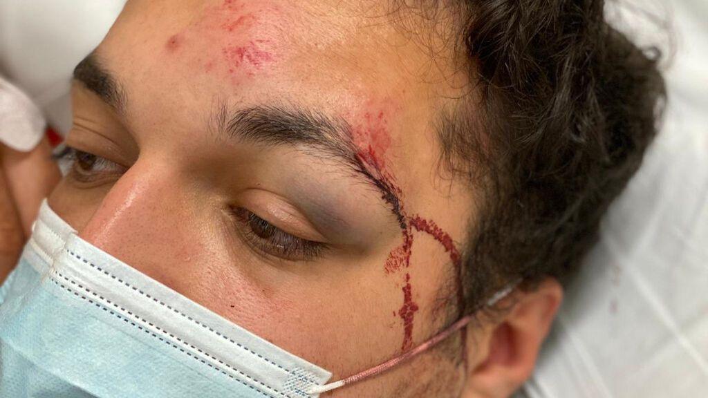 Un detenido por la agresión a un universitario en la zona de copas de Vigo