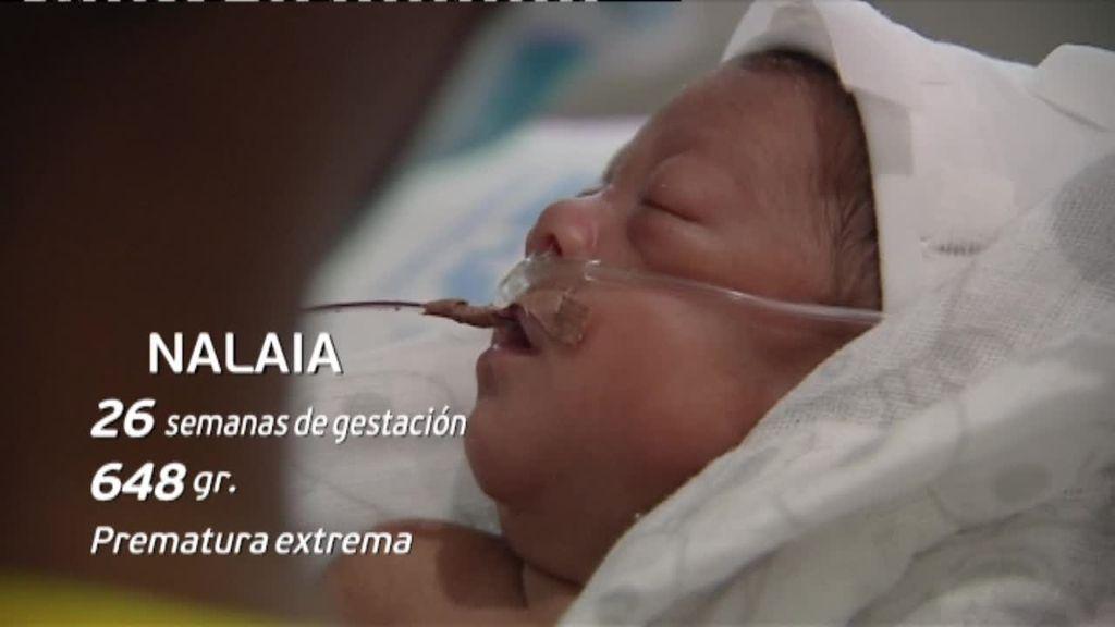 La historia de superación de Nalaia, una prematura que nació a las 26 semanas por el covid grave de su madre