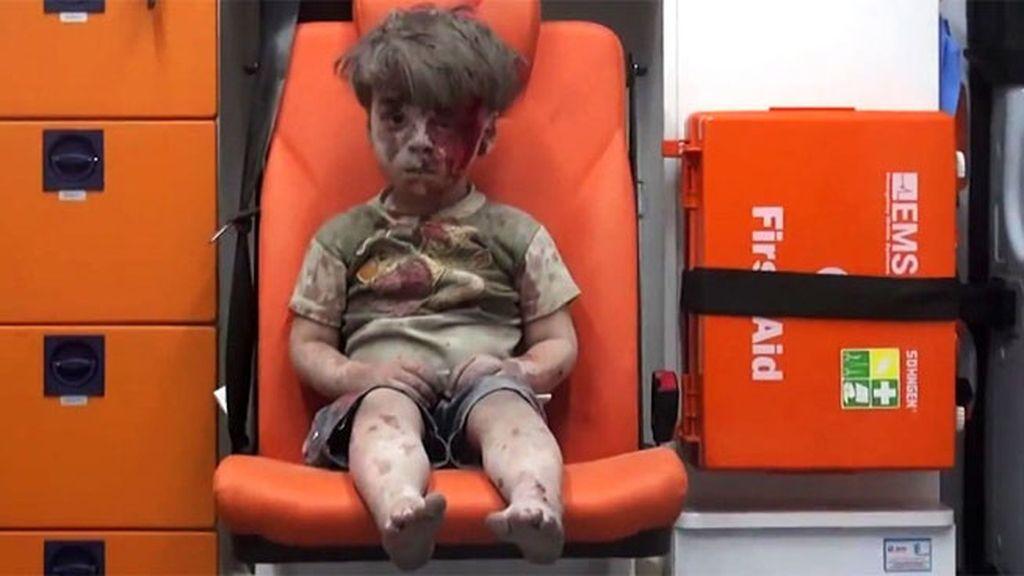 Omran, el rostro de la guerra en Siria