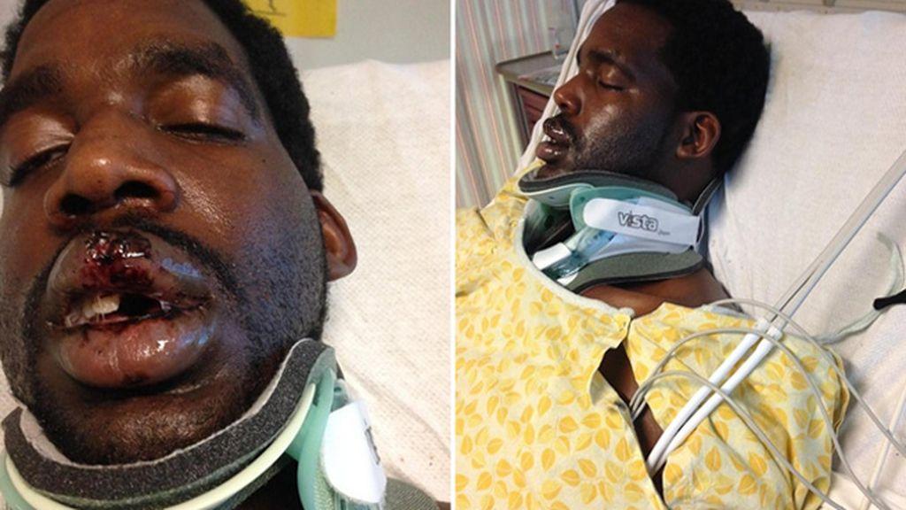 Un hombre se fractura el cuello tras explotarle un cigarro electrónico en la cara