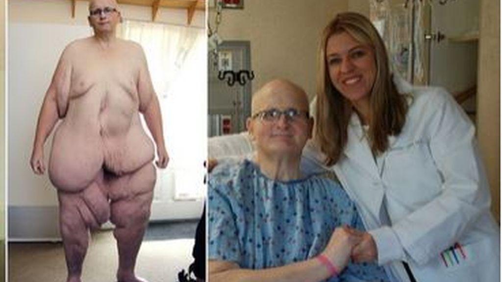 El exhombre más gordo del mundo vuelve a caminar tras eliminar la piel suelta de sus piernas