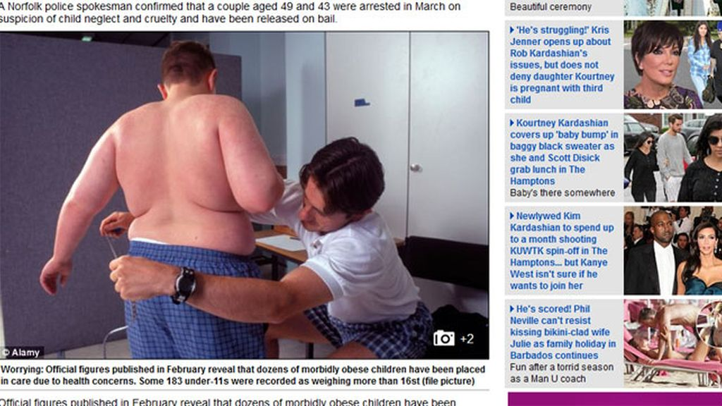 Obeso mórbido con 11 años