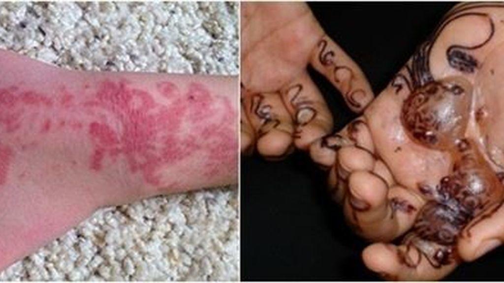 Los tatuajes de henna negra pueden producir reacciones alérgicas graves