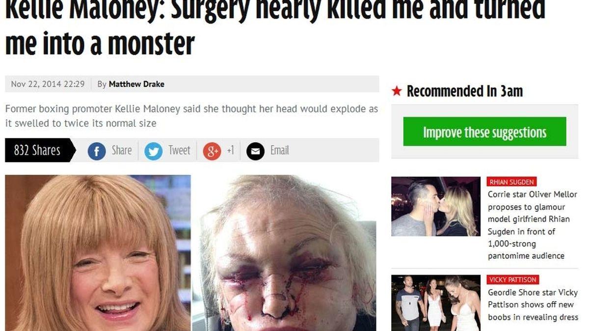 Kellie Maloney se sometió a una cirugía facial que terminó siendo fatal