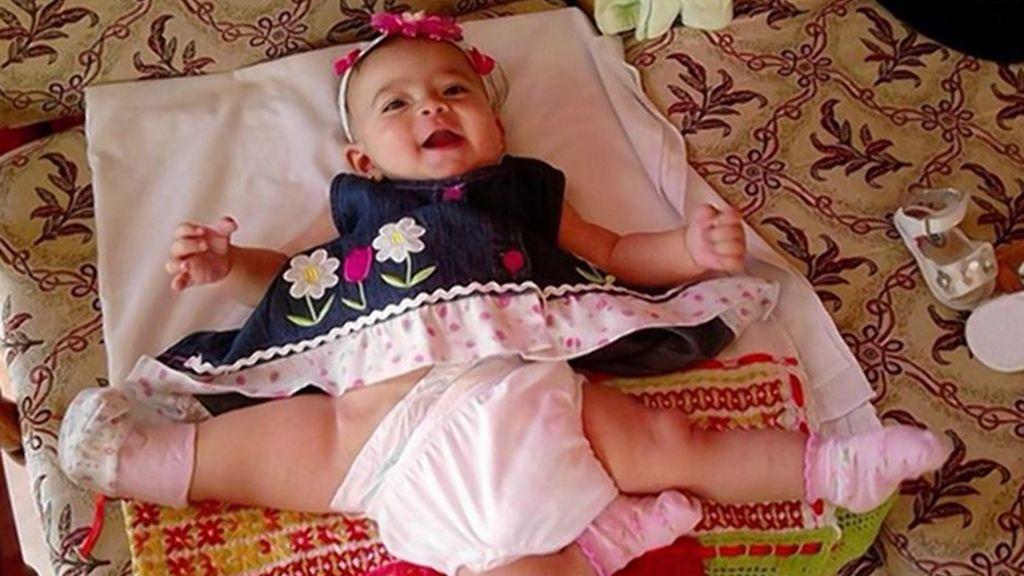 Ana Paula, la niña de tres piernas será operada