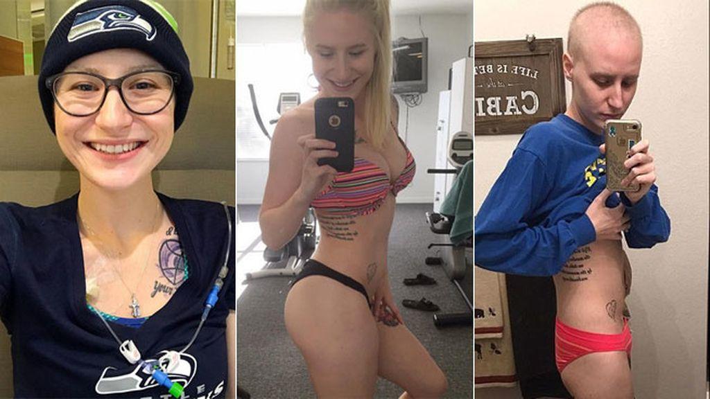 Una amante del fitness muestra los estragos físicos del cáncer