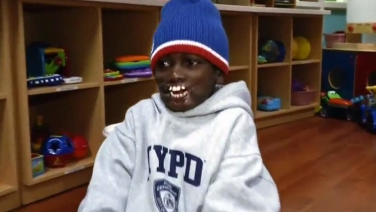 Un niño congoleño atacado por un chimpancé espera ser operado en Nueva York