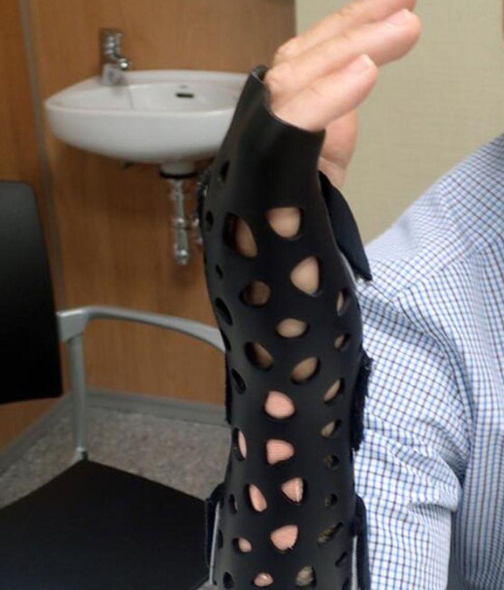 Younext, férula impresa en 3D para una fractura