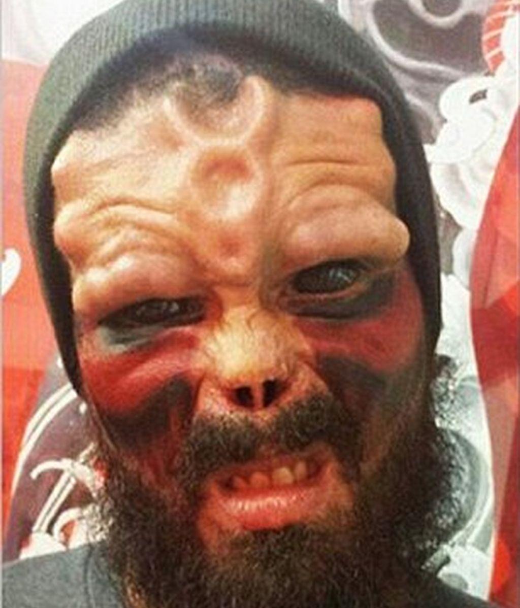 Se opera la nariz y se tatúa la cara para parecerse a Cráneo Rojo de 'Capitán América'