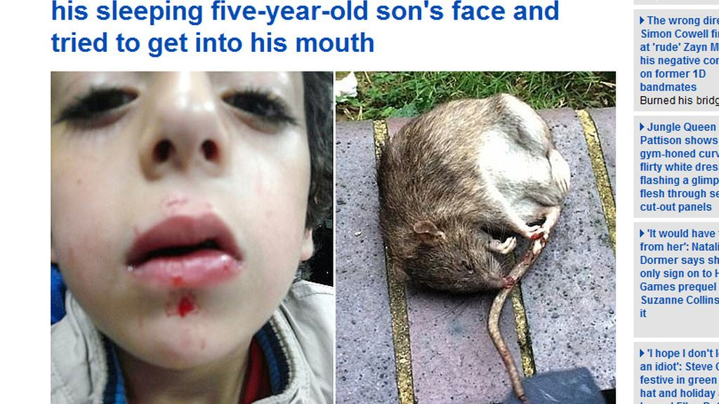 Un niño de cinco años atacado por una rata mientras dormía