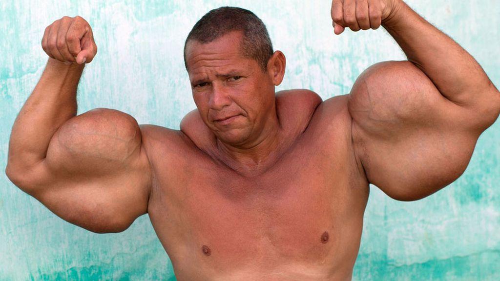 El hombre con los bíceps más grandes de Brasil