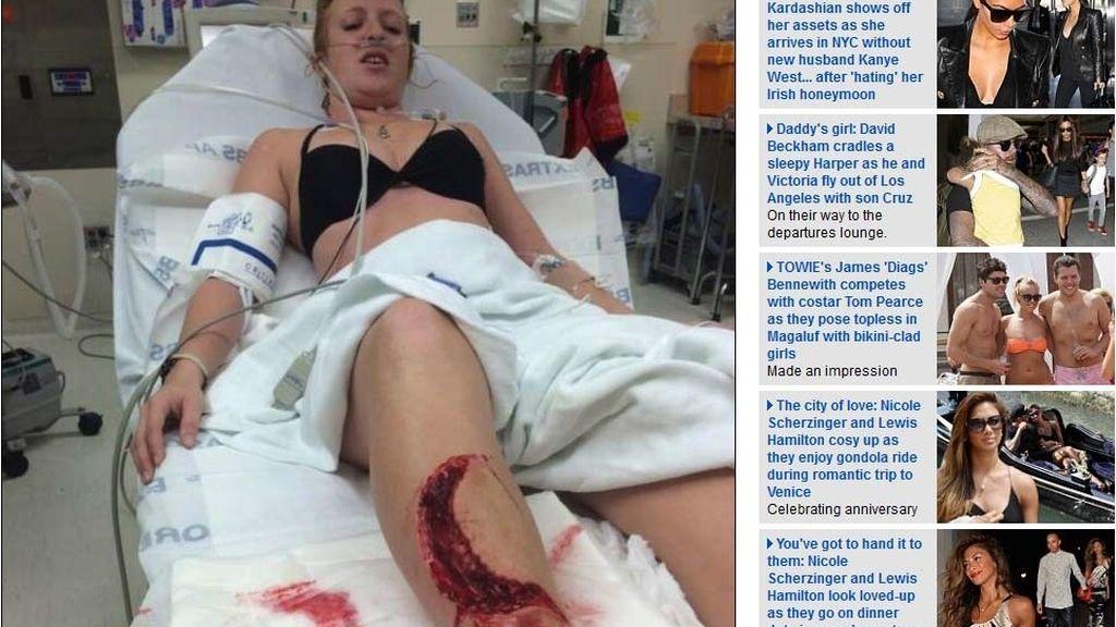 Sobrevive tras el ataque de un tiburón toro en una pierna