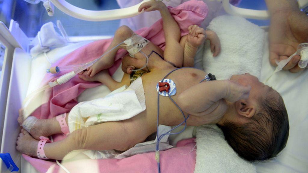Nace un bebé con 4 manos y 4 pies
