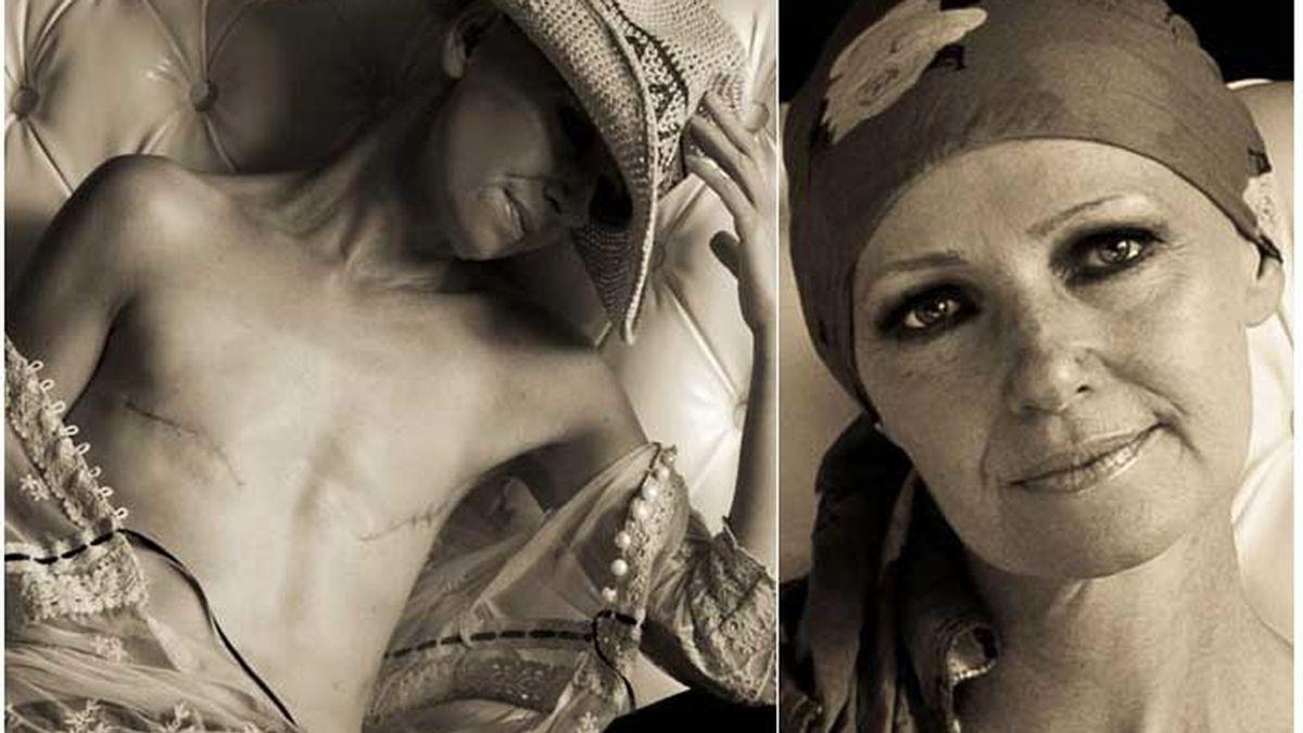 Jai Eastwood, desnuda tras una mastectomía