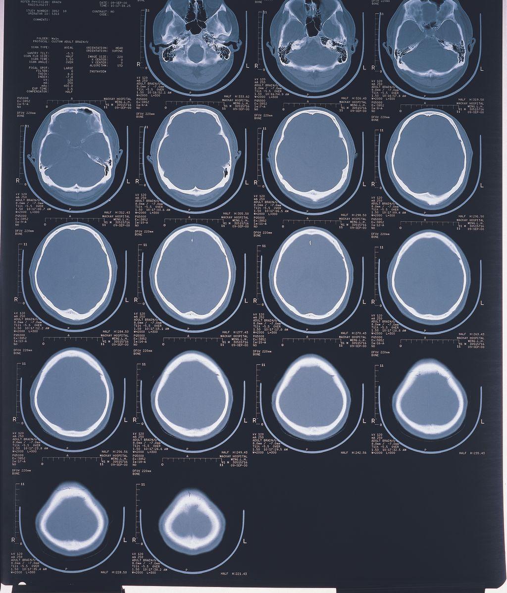 Radiografía de cerebro