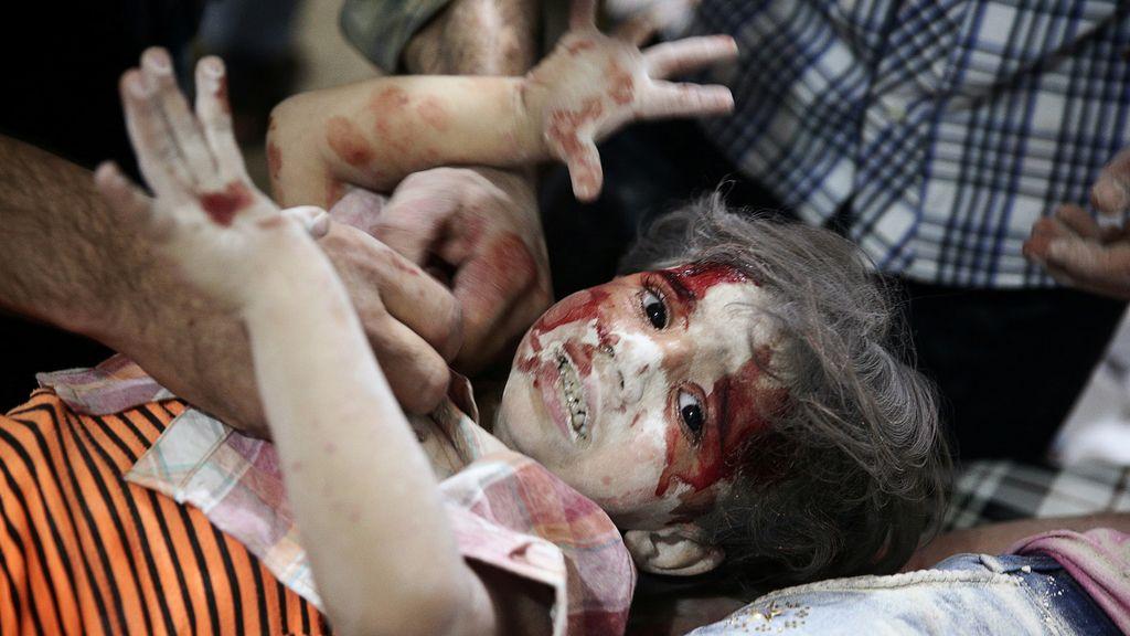 El terror de la guerra en Siria, reflejado en el rostro de una niña