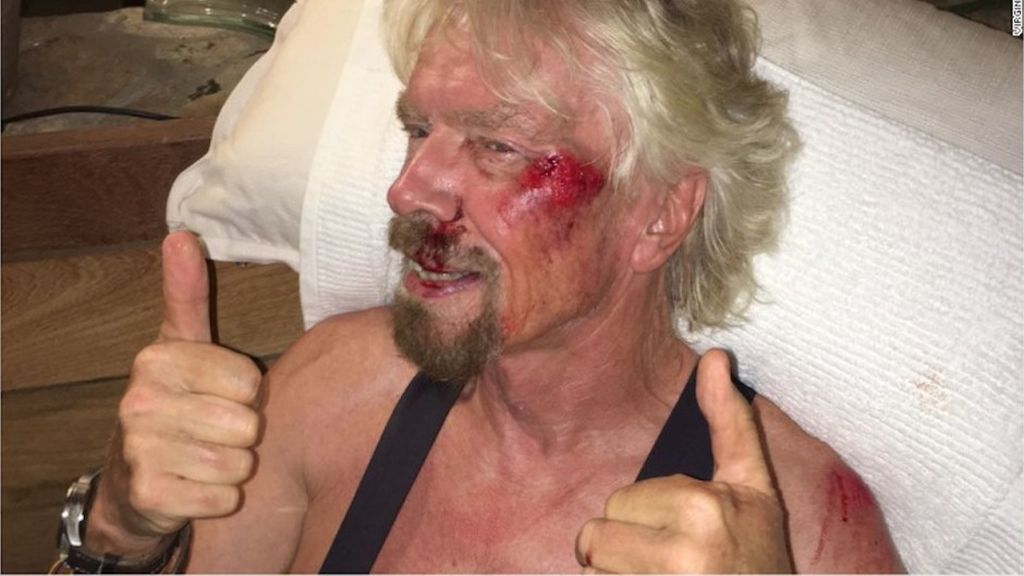 """Richard Branson sufre un accidente en el que creía que """"iba a morir"""""""
