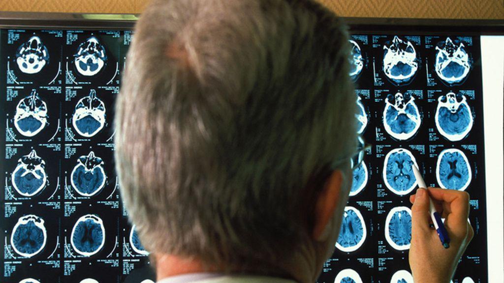 Desarrollan una molécula que detiene el Alzheimer en ratones