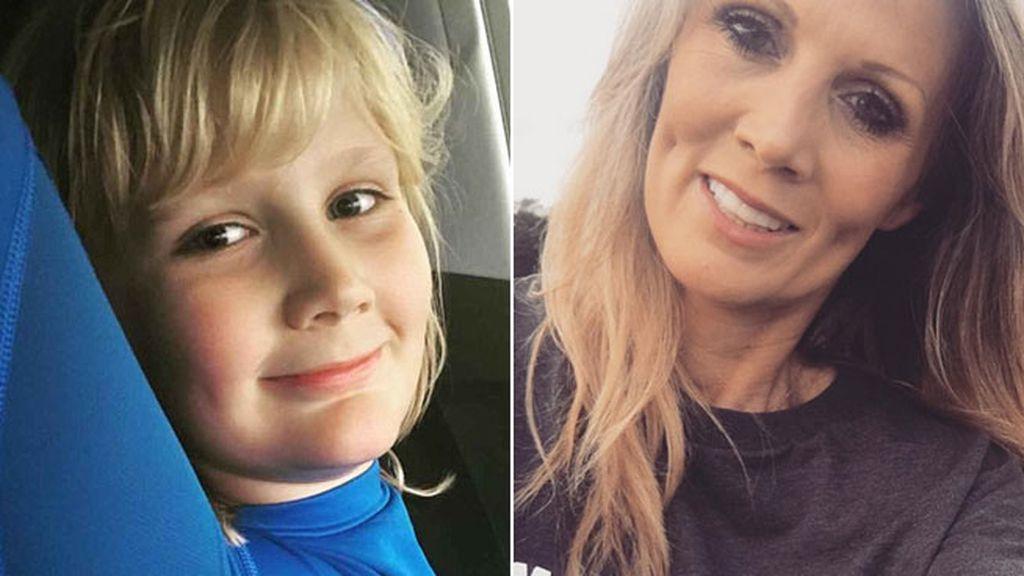 Una madre se somete a cirugía estética para tener los mismos hoyuelos que su hijo