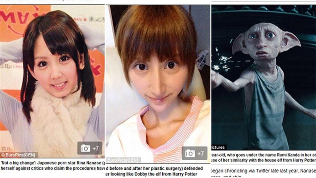 Una cirugía estética excesiva le deja la cara como el elfo de Harry Potter