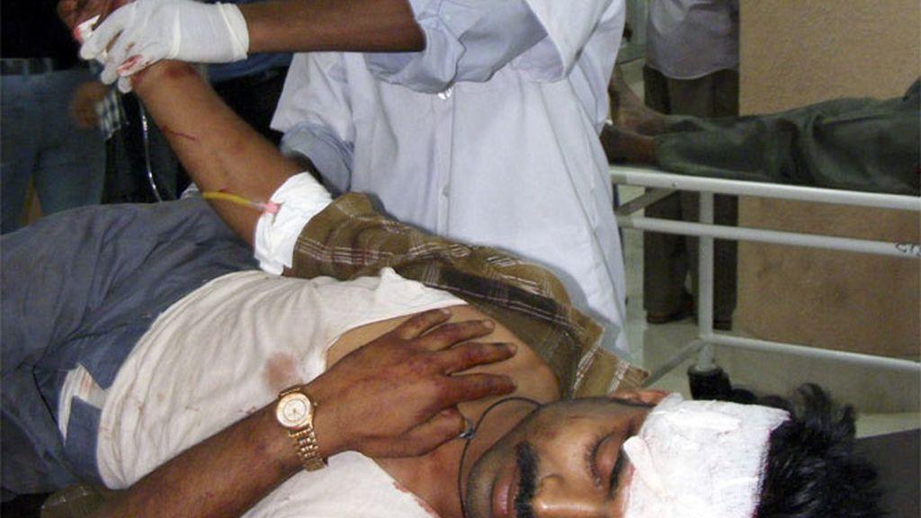 Herido en un atentado en Pakistán