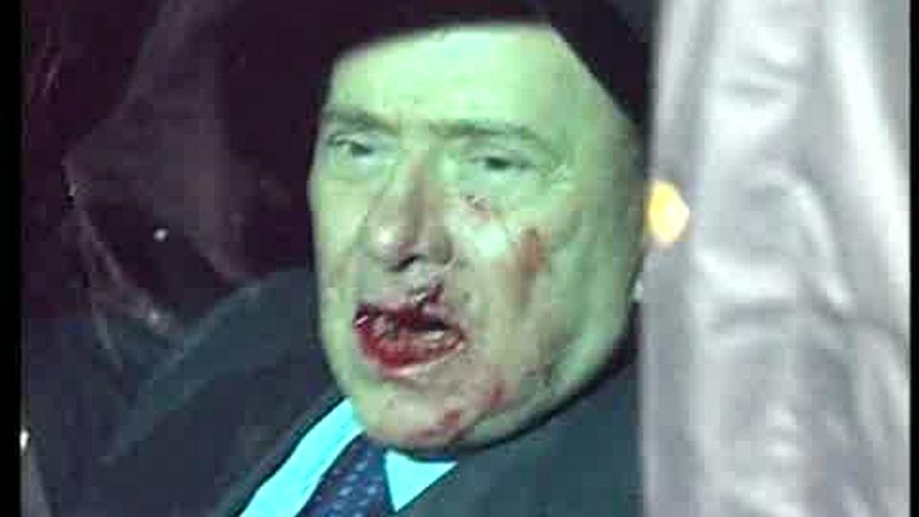 Berlusconi agredido