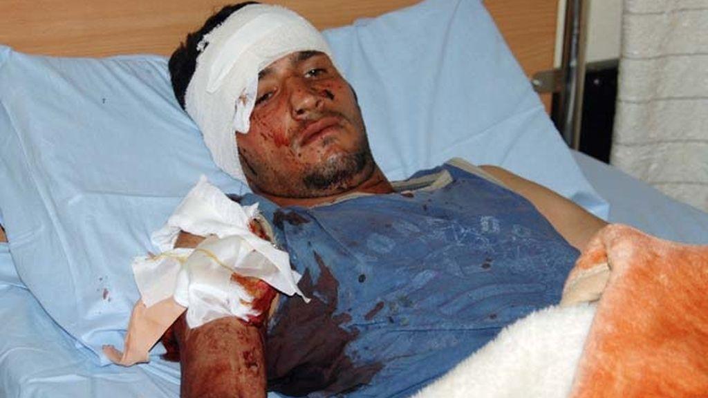 Un civil herido en un hospital de Bagdad tras el doble atentado suicida