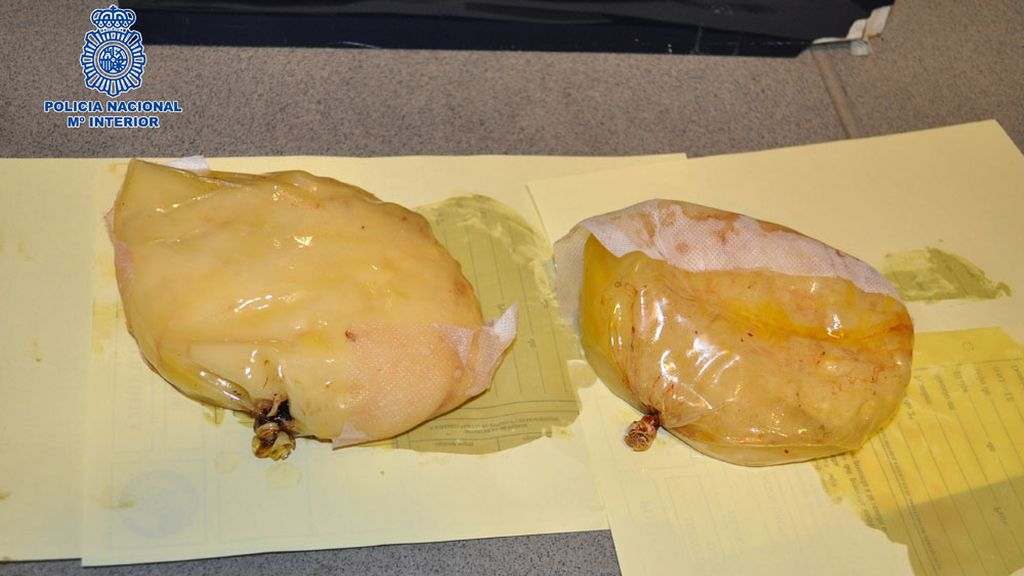 Implantes mamario llenos de cocaína