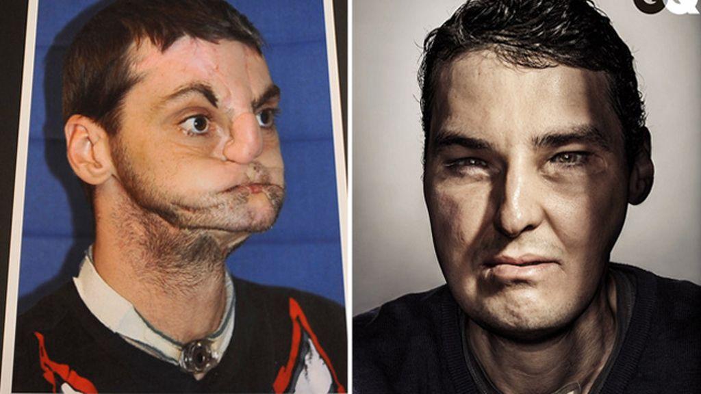 Portada de GQ tras someterse a un trasplante de cara
