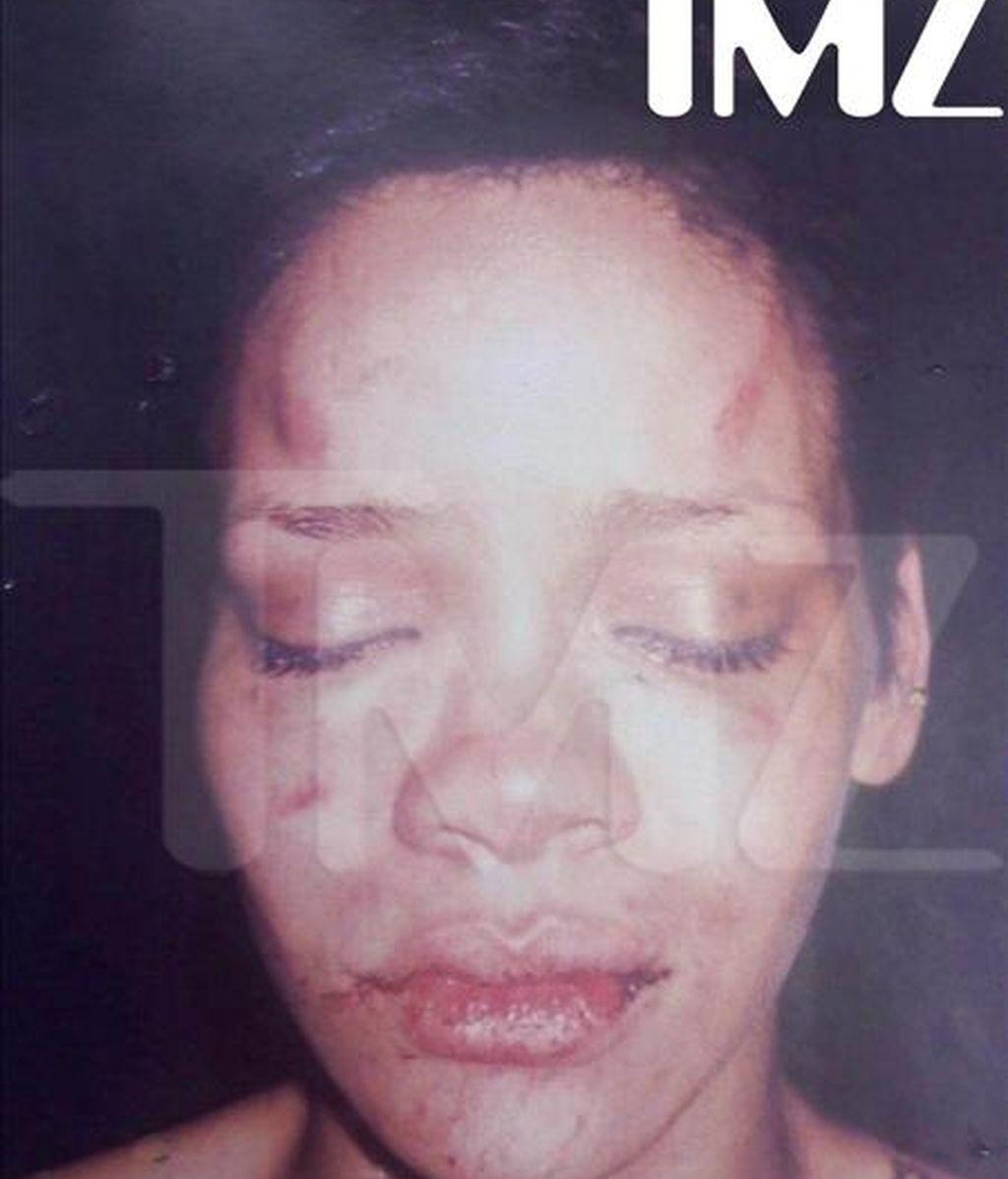 Fotografía cedida por TMZ en la que se observa a la cantante originaria de Barbados Rihanna con las secuelas de la agresión que sufrió por parte de su novio, el también cantante Chris Brown, antes de la ceremonia de entrega de los premios Grammy. EFE
