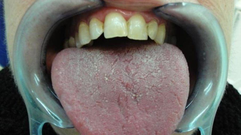 Un nuevo enfoque de la radioterapia reduce los síntomas de boca seca