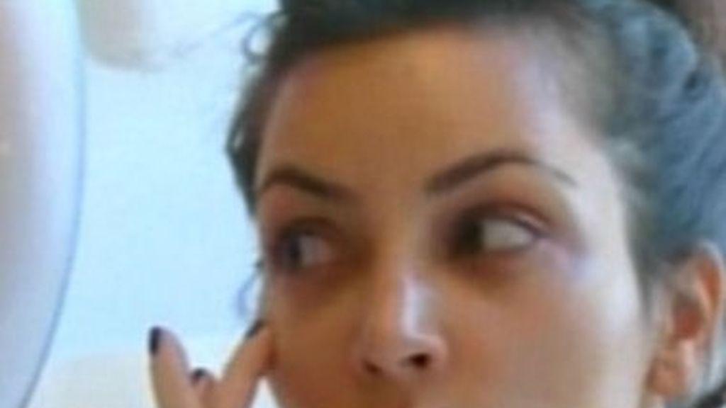 Kim Kardashian se pone botox en directo