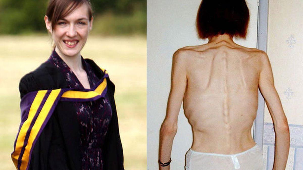 anorexia, enfermedad