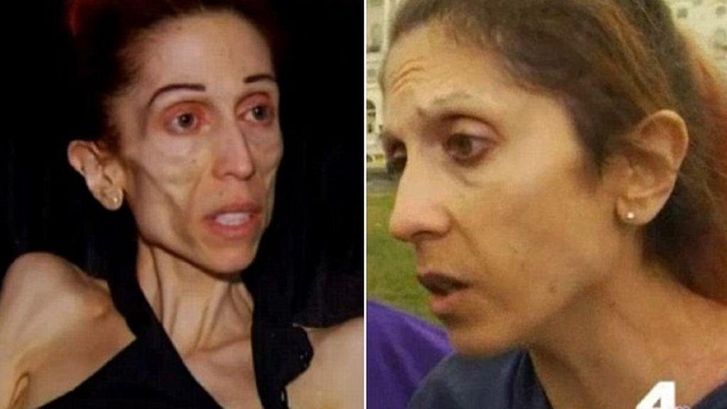 Increíble recuperación de la mujer anoréxica que estuvo a punto de morir
